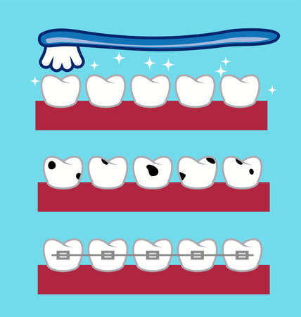 Toothbrush over healthy and shiny teeth.