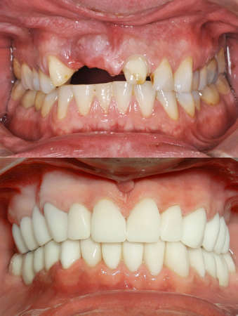 A close up of a patient's mouth at a dental clinic. Before and after Stockfoto