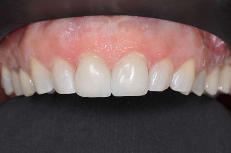 dental calculus: A close up of a patients upper row of teeth at a dental clinic Stock Photo