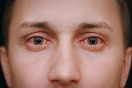 El primer plano de dos ojos rojos molestos de un hombre afectado por conjuntivitis