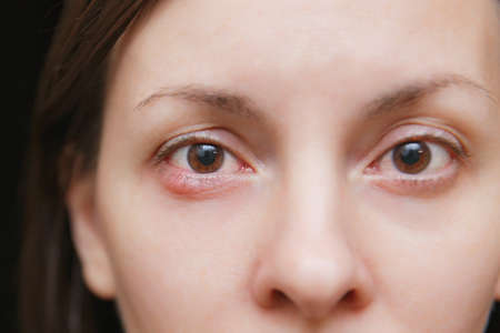 Close up photo of young caucasian brunette woman barley brown eye infection, eyelid abscess, stye, hordeolum. Concept of health, disease and treatment Stock Photo