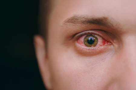 The close up of one annoyed red blood eye of a man affected by conjunctivitis