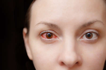 Close up one annoyed red blood and health eye of female affected by conjunctivitis or after flu, cold or allergy. Concept of disease and treatment. Copy space for advertisement. With place for text Stock Photo