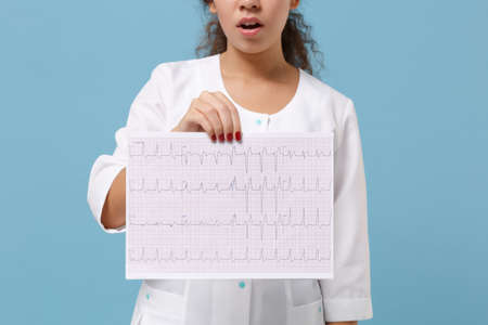 Cropped image of doctor woman in medical gown hold electro cardiogram record, heart ekg chart of wave in paper isolated on blue background. Healthcare personnel medicine concept. Mock up copy space.