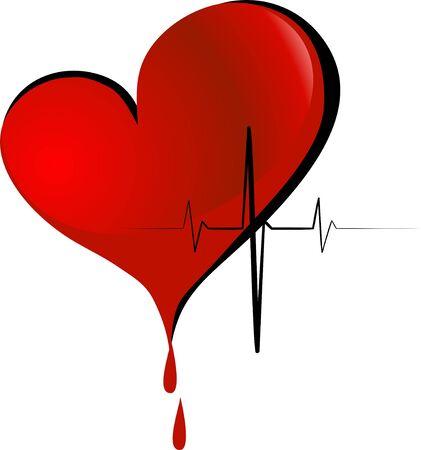 hemorragias: Donaci�n
