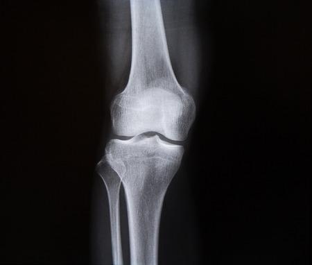 luxacion: Radiografía de la articulación de la rodilla de la pierna. Medicina Foto de archivo