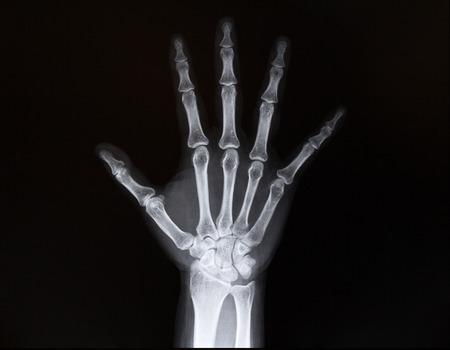 luxacion: Radiografía de la muñeca de los brazos. Medicina Foto de archivo