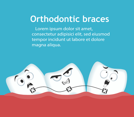Orthodontic braces banner with teeth characters Stock Illustratie