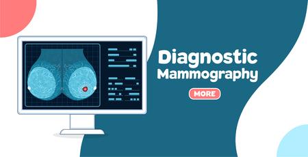 Bannière de mammographie diagnostique Vecteurs