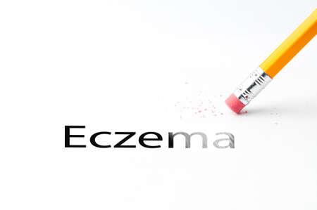 Closeup of pencil eraser and black eczema text. Eczema. Pencil with eraser.
