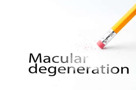 Closeup of pencil eraser and black macular degeneration text. Macular degeneration. Pencil with eraser.