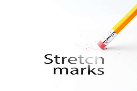 eradicate: Closeup of pencil eraser and black stretch marks text. Stretch marks. Pencil with eraser. Stock Photo