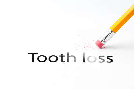 cavity braces: Closeup of pencil eraser and black tooth loss text. Tooth loss. Pencil with eraser.