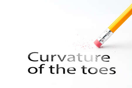 musculoskeletal: Closeup of pencil eraser and black curvature of the toes text. Curvature of the toes. Pencil with eraser. Stock Photo