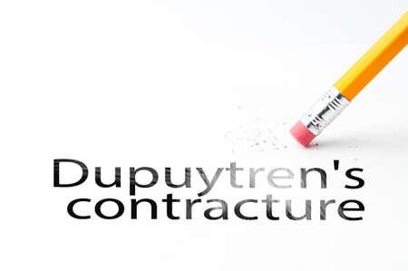 contracture: Closeup of pencil eraser and black dupuytrens contracture text. Dupuytrens contracture. Pencil with eraser.