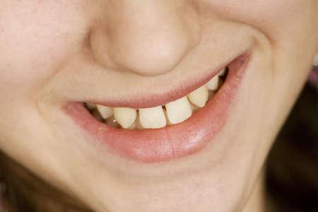 crooked teeth: Model Release 307  Teenage girl with teeth that need of dental work
