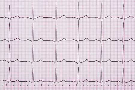 Nahaufnahme eines Elektrokardiogramm auch als EKG oder EKG-Kurve bekannt Standard-Bild - 50198253