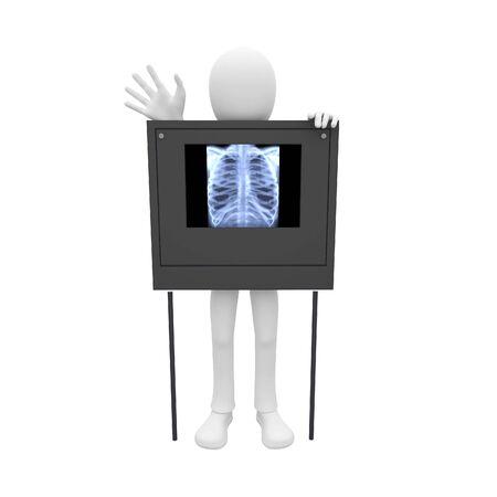 pulmonary: 3d man having a pulmonary film scan