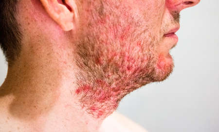 Detail of mans chin with seborrheic dermatitis in the beard area