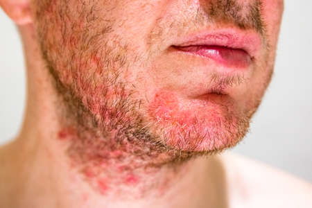 Detail of mans chin with seborrheic dermatitis in the beard area
