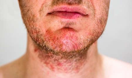 Detail of mans chin with seborrheic dermatitis in the beard area Stockfoto