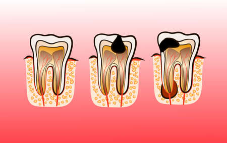 Vector illustration of tooth decay. Four stages of dental caries.