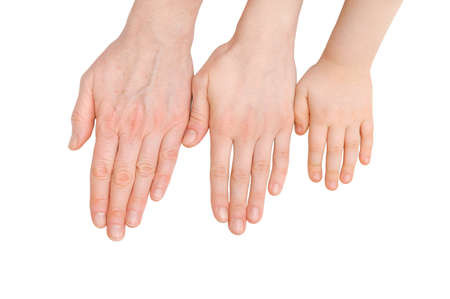 the ageing process: youth, adult and senior palms  The ageing process Stock Photo
