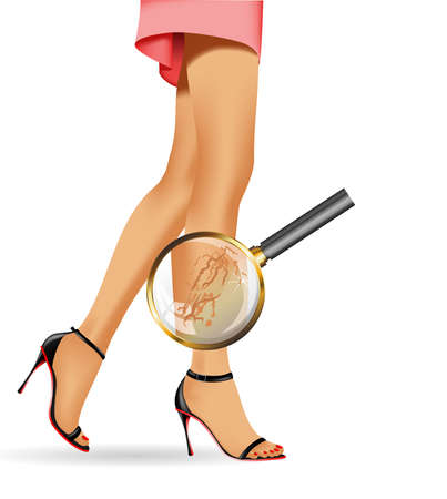 Female slim legs and varicose with health symbols vector realistic illustration