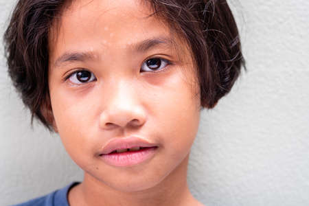 Closeup face and eyes of poor Thai girl, nine years old girl abandonment of both parents