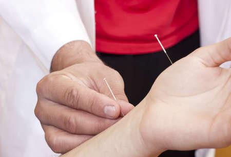 acupuntura china: Acupuntura se realiza Foto de archivo