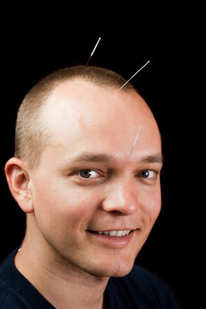 Man receiving cranial acupuncture, looking at camera Stock Photo - 10470657