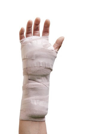 arthritic: Hand in a cast from carpal tunnel surgery