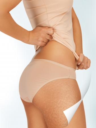 picture of woman in cotton underwear showing good skin concept photo