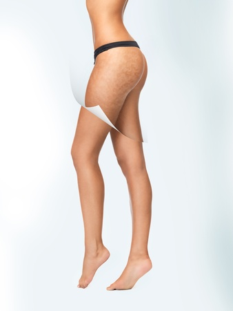 cellulite: closeup picture of woman in cotton underwear showing skin cleanse concept Stock Photo
