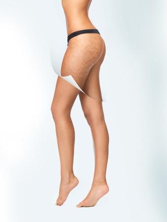 mujer celulitis: Primer plano retrato de mujer en ropa interior de algod?n que muestra concepto piel limpia