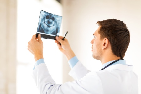 picture of male doctor or dentist looking at x-ray photo