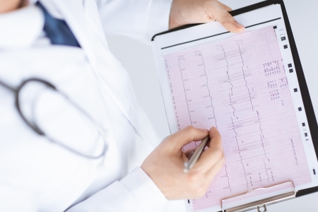 cardiogram: bright picture of male doctor hands with cardiogram