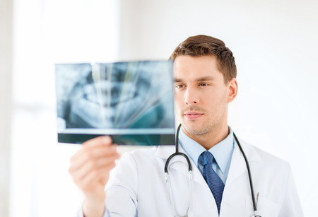 medicine and healthcare concept - concerned male doctor or dentist looking at x-ray in hospital Zdjęcie Seryjne