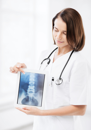 healthcare, medical and technology concept - female doctor with x-ray on tablet pc photo