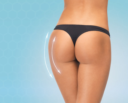 bragas: cirugía plástica, la belleza, la gente y el concepto del cuerpo - cerca de las piernas femeninas en bragas bikini negro sobre fondo azul
