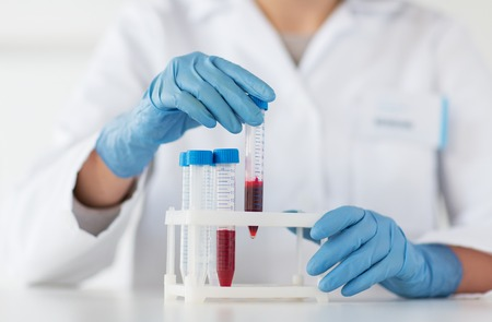 과학, 화학, 생물학, 의학 사람들 개념 - 가까이 임상 실험실에서 혈액 샘플 제작 및 시험 또는 연구와 젊은 여성 과학자 잡고 튜브의 최대