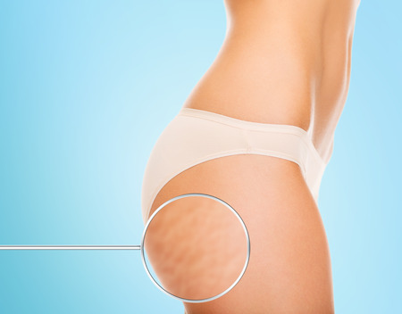 fat: close up of woman buttocks with cellulite and magnifier over blue background