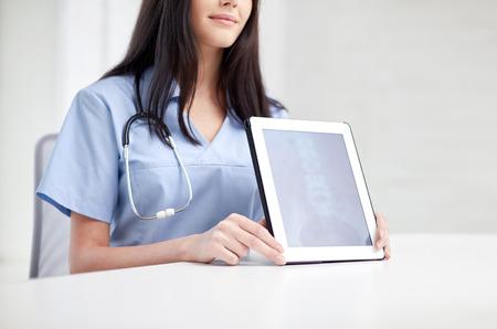 colonna vertebrale: concetto di medicina, salute e ospedale - vicino di medico di sesso femminile che mostra a paziente a raggi x della colonna sullo schermo del computer tablet pc
