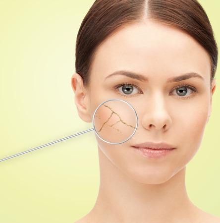 gezondheid, mensen, huidverzorging en schoonheid concept - mooie jonge vrouw gezicht met een droge vochtarme huid en vergrootglas op groene achtergrond Stockfoto