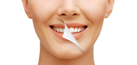 dientes: la belleza y el concepto de salud dental - hermosa mujer con dientes blancos, antes y despu�s Foto de archivo