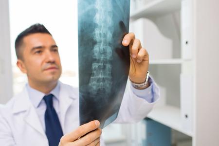 colonna vertebrale: sanit�, Rontgen, le persone e la medicina concetto - close up di medico di sesso maschile in camice bianco guardando x-ray in ospedale
