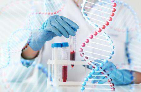 dna test: science, chemistry, biology, medicine and people concept - close up of young female scientist holding tube with blood sample in clinical laboratory and dna molecule structure