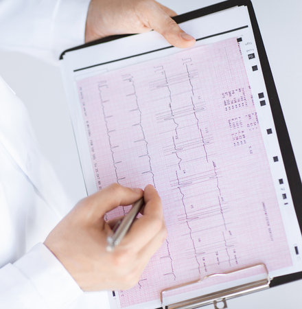 electrocardiograma: brillante imagen de macho manos del médico con electrocardiograma Foto de archivo