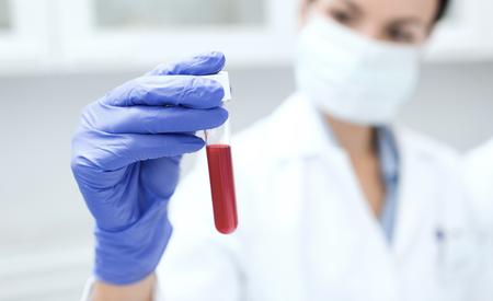 la ciencia, la química, la biología, la medicina y el concepto de la gente - cerca del científico de sexo femenino joven que sostiene el tubo de ensayo con la fabricación de la muestra de sangre la investigación en laboratorio clínico