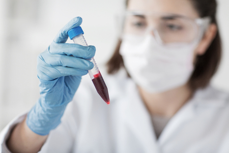 close up of young female scientist holding tube with blood sample making and test or research in clinical laboratory